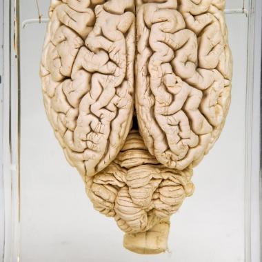 【ニュース】死んだブタの脳を回復、脳死の定義ゆるがす研究